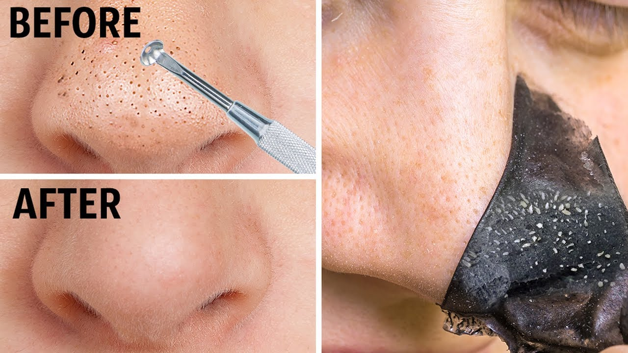 How To Remove Blackheads From Nose And Face 12 Best Natural Tips